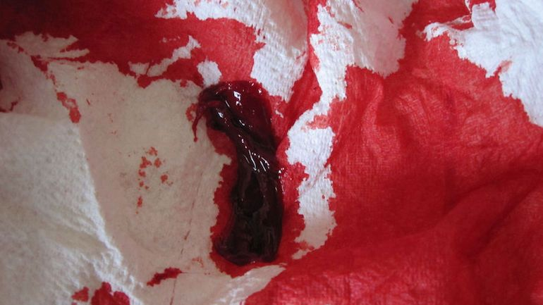 continuous menstrual bleeding with blood clots / latest blood thinners, Cephalic Vein